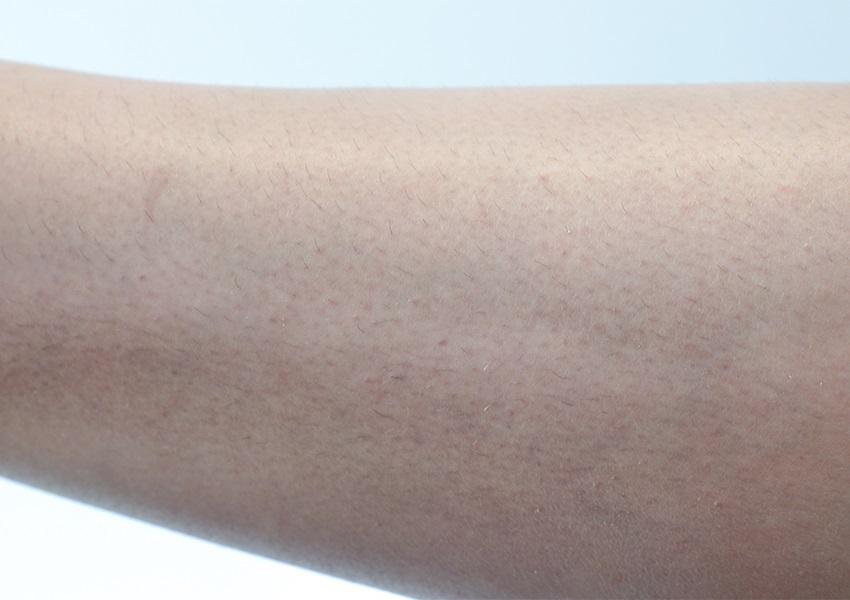 IPL epilátor, Beurer IPL 8500 Velvet Skin Pro, recenze, srovnání