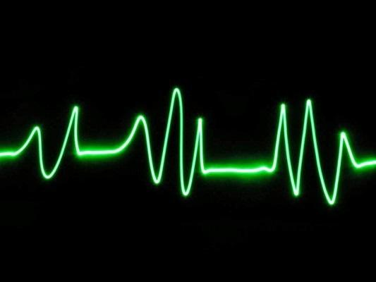 Srdeční tep; graf