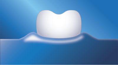 Philips Sonicare DiamondClean - pečuje o dásně