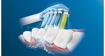 Zuby čistím poctivě. Dle ortodontisty možná.
