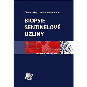 Biopsie sentinelové uzliny