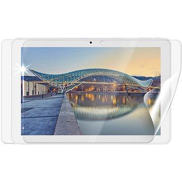 Screenshield IGET Smart W101 na celé tělo - Ochranná fólie