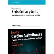 Srdeční arytmie praktické poznámky k interpretaci a léčbě - Elektronická kniha