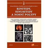 Rinitidy, sinusitidy a nosní polypy - Bohumil Markalous, František Charvát, Jan Nejedlý, Eva Zýková