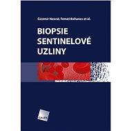 Biopsie sentinelové uzliny - Čestmír Neoral