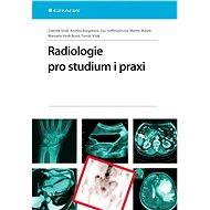 Radiologie pro studium i praxi - Zdeněk Seidl, Andrea Burgetová, Eva Hoffmannová, Martin Mašek, Manuela Vaněčková