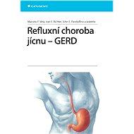Refluxní choroba jícnu - GERD - Elektronická kniha