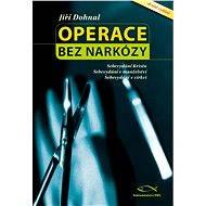 Operace bez narkózy - Elektronická kniha