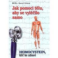 Jak pomoci tělu, aby se vyléčilo samo: Homocystein, klíč ke zdraví