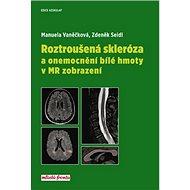 Roztroušená skleróza a onemocnění bílé hmoty v MR zobrazení - Kniha
