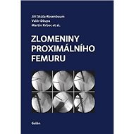 Zlomeniny proximálního femuru - Kniha