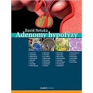 Adenomy hypofýzy - Kniha