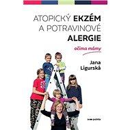 Atopický ekzém a potravinové alergie očima mámy - Kniha