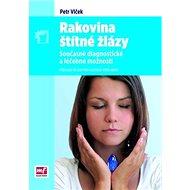 Rakovina štítné žlázy: současné diagnostické a léčebné možnosti - Kniha