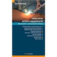 Ambulantní operace křečových žil: Miniinvazivní a endovaskulární přístupy - Kniha