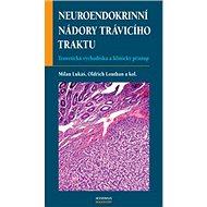 Neuroendokrinní nádory trávicí - Kniha
