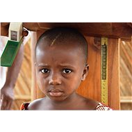 Fighting Child Malnutrition - Charity Project