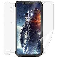 Screenshield IGET Blackview GBV9600 Pro na celé tělo - Ochranná fólie
