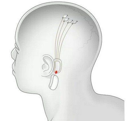Neuralink, vlákna