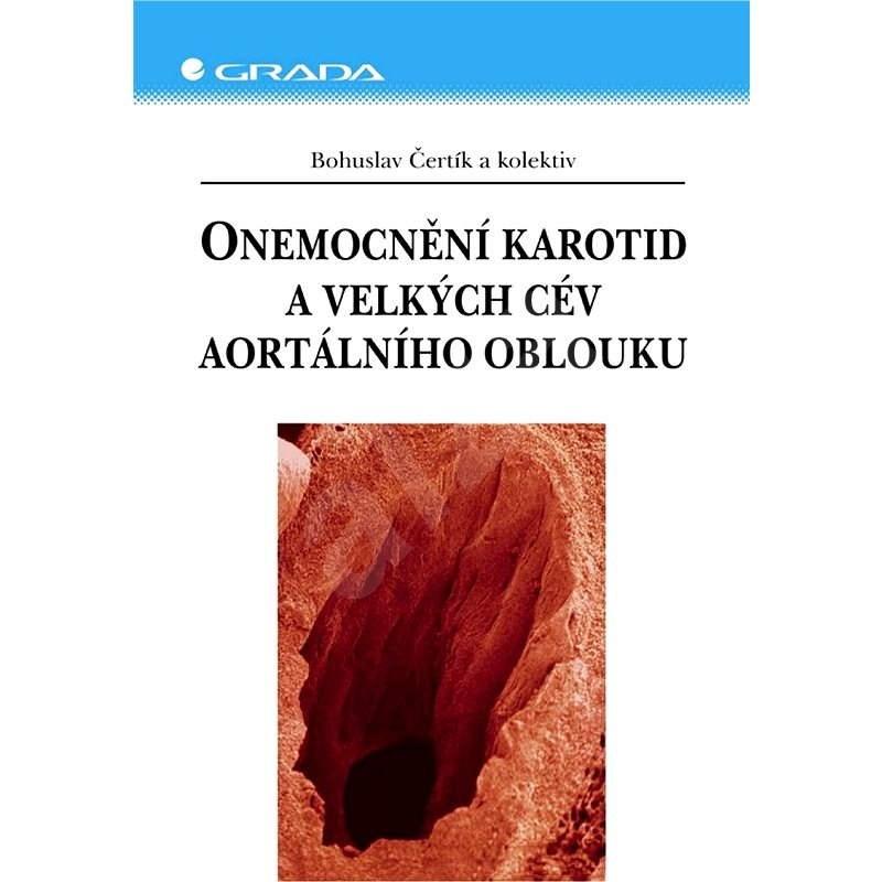 Onemocnění karotid a velkých cév aortálního oblouku - Bohuslav Čertík