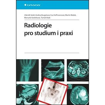Radiologie pro studium i praxi - Zdeněk Seidl; Andrea Burgetová; Eva Hoffmannová; Martin Mašek; Manuela Vaněčk...