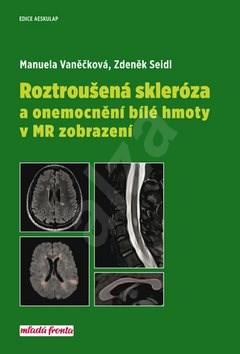Roztroušená skleróza a onemocnění bílé hmoty v MR zobrazení - Manuela Vaněčková; Zdeněk Seidl
